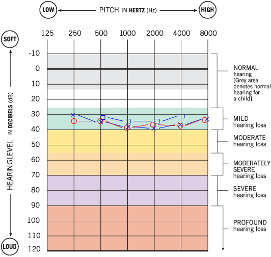 Mild Hearing Loss Audiogram