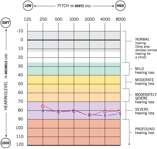 Severe Hearing Loss Audiogram
